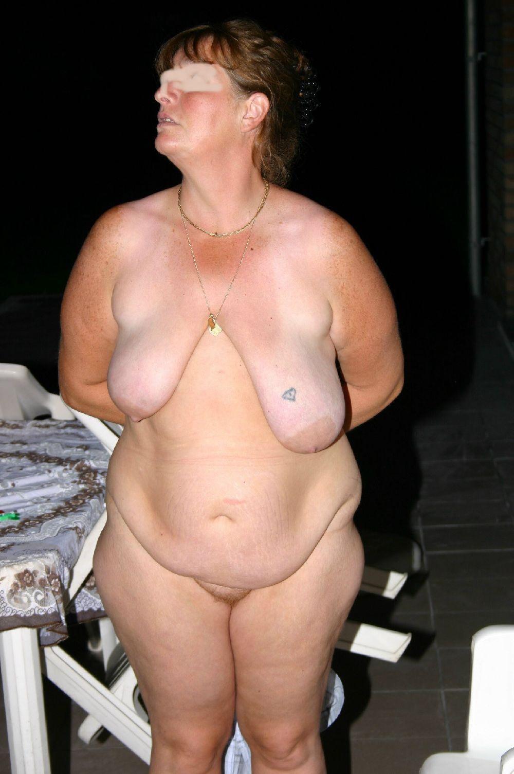 Ugly saggy deformed tits