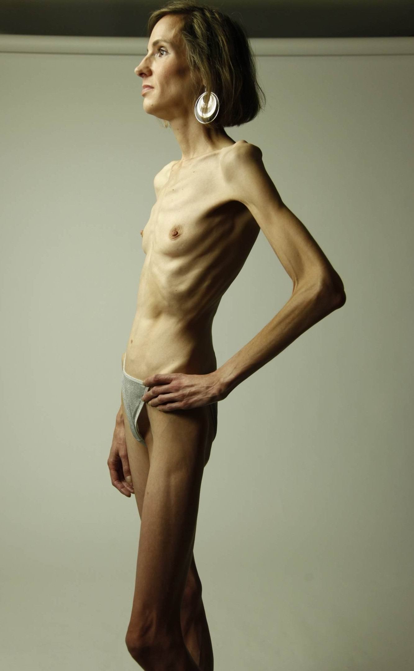 anorexia nude girls thumbs